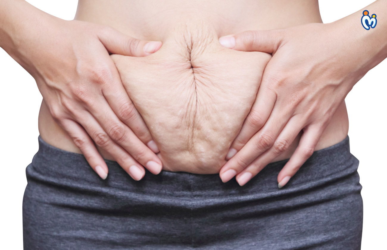 Home remedies to get rid of stretch marks post-delivery naturally