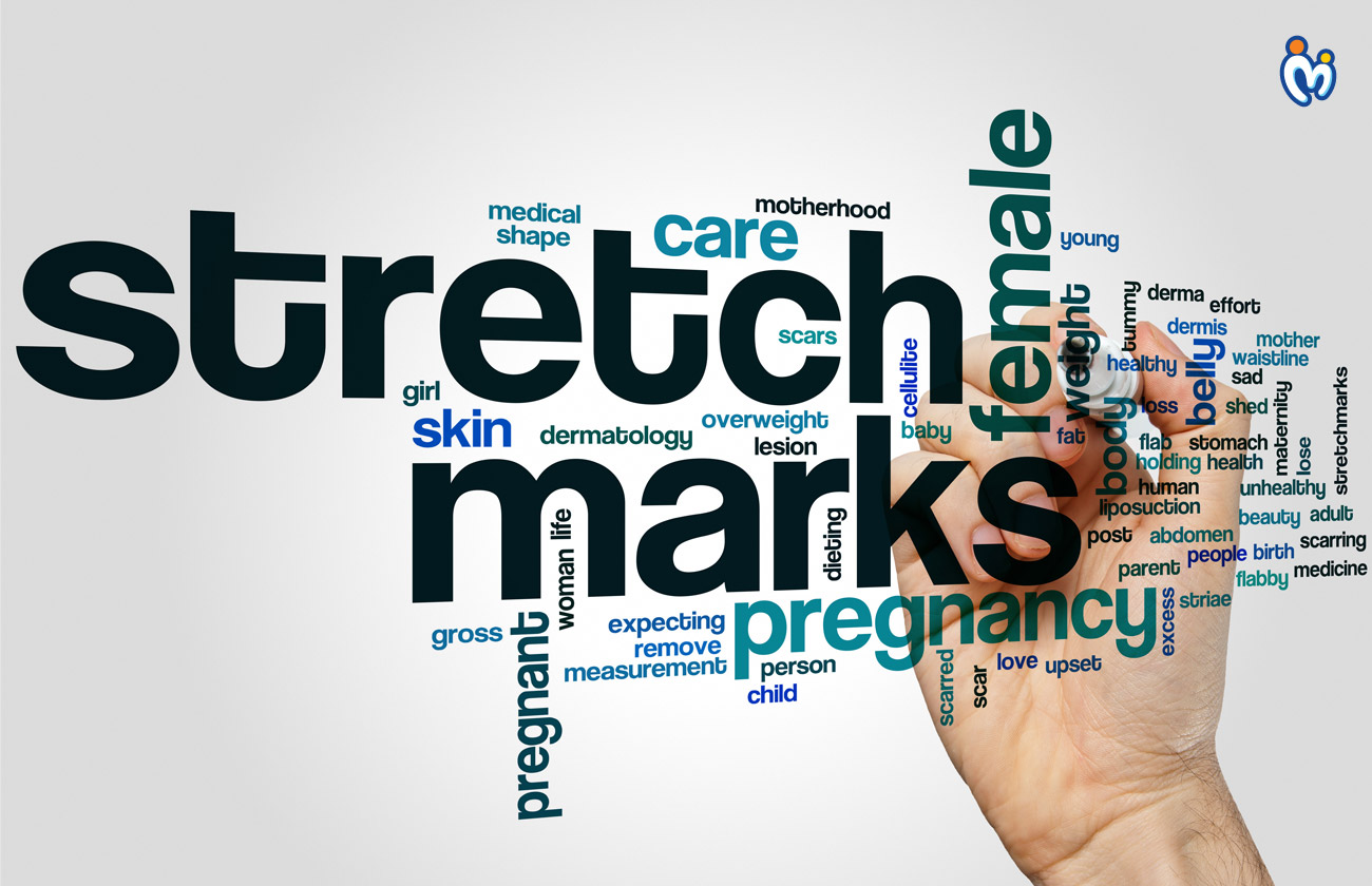 How To Avoid Stretch Marks In Pregnancy